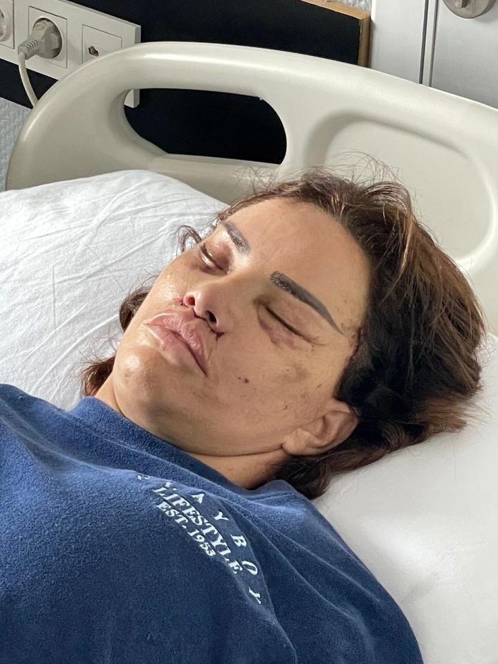 Người mẫu 43 tuổi biến dạng vì phẫu thuật thẩm mỹ