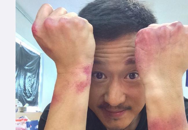 Tài tử Ngô Kinh khâu hơn 100 mũi, chấn thương não vì tai nạn phim trường