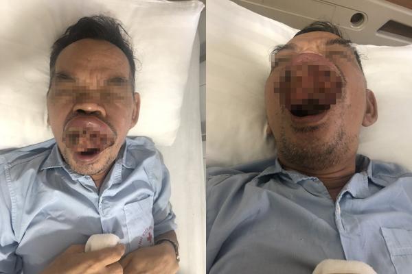 Người đàn ông Hà Nội mọc khối u chồi ra khỏi miệng
