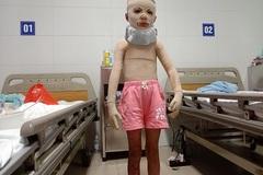 Bé Diễm My bị bỏng cồn đã được phẫu thuật lần 3