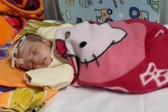 Sự sống mong manh của bé gái 5 tháng tuổi bị tắc ruột bẩm sinh