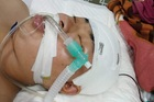 Mẹ nghèo khẩn cầu 300 triệu đồng giúp con trai tai nạn nguy kịch
