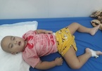 Mổ 4 lần trong 3 tháng, bé trai ung thư não xin cứu mạng