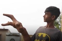 Cuộc sống đầy cảm hứng của chàng trai có đôi bàn tay khổng lồ
