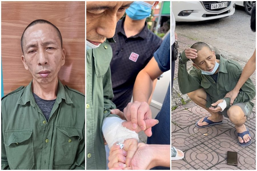 Người đàn ông nghiện giả bó bột tay để giấu ma tuý mang đi bán