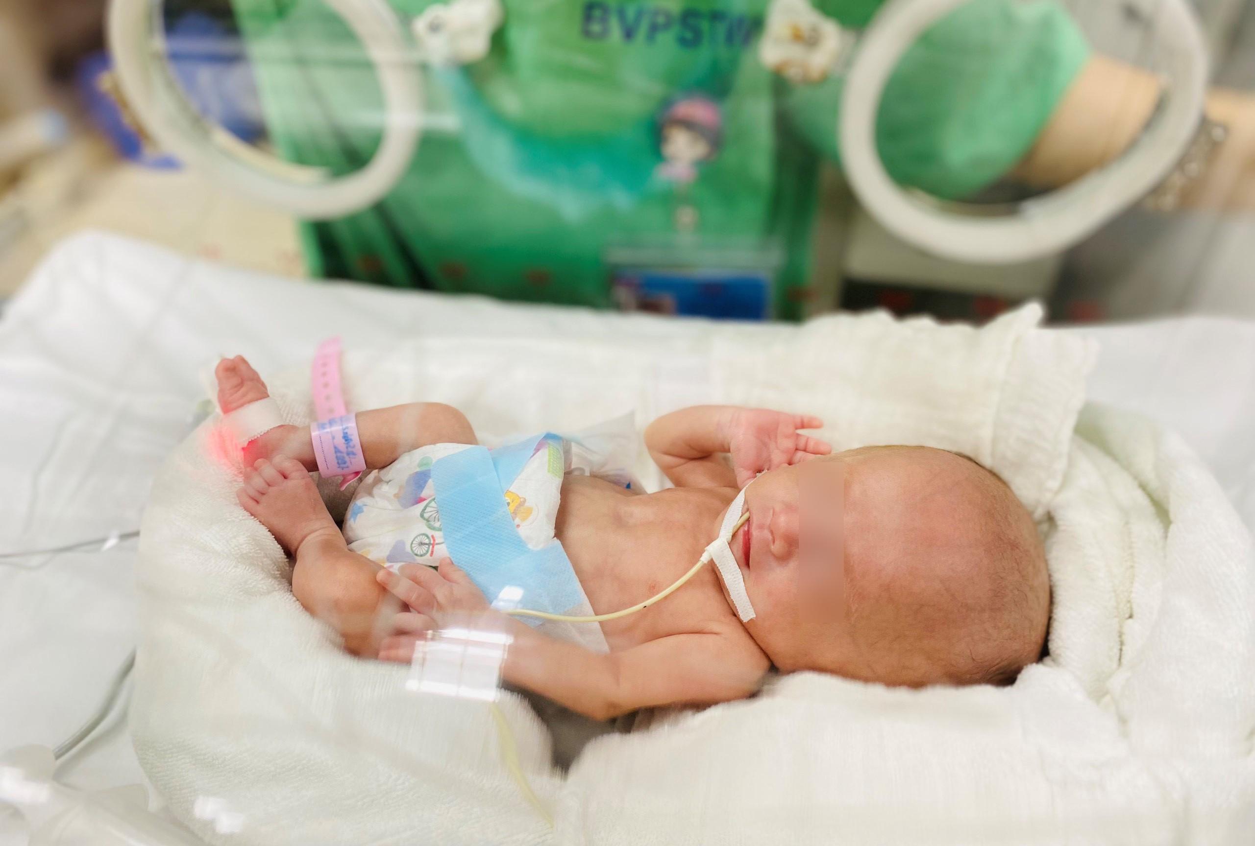 Nuôi dưỡng thành công bé gái sinh non chỉ nặng 0,4kg khi chào đời