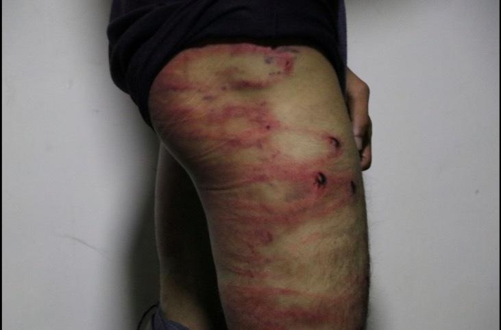 Hai nhà báo Afghanistan bị Taliban đánh bầm tím khắp người
