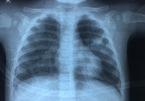 Bé 7 tháng tuổi mắc Covid-19 đông máu, viêm phổi nặng