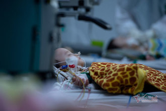 Doctors try to save seriously ill Covid-19-infected children