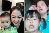 """Bị mắng """"vô ơn"""", mẹ em bé được bà Phương Hằng bay sang Singapore cho tiền mổ não gọi điện cầu cứu lúc nửa đêm"""