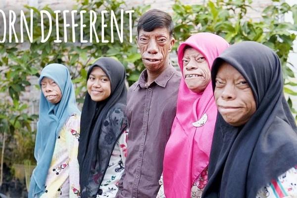 Bí ẩn gia đình có bốn người mang khuôn mặt 'hình cá'