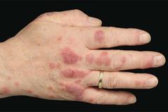 Người đàn ông phát hiện bệnh hiểm nghèo nhờ vết mẩn đỏ trên tay