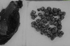 Thường xuyên đau bụng, đi viện phát hiện 56 viên sỏi đều tăm tắp trong túi mật