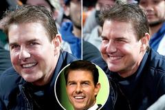 Mặt Tom Cruise sưng phù, fan nghi tiêm filler