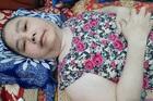 Nỗi tuyệt vọng của cô giáo bệnh tật nằm liệt giường suốt 30 năm